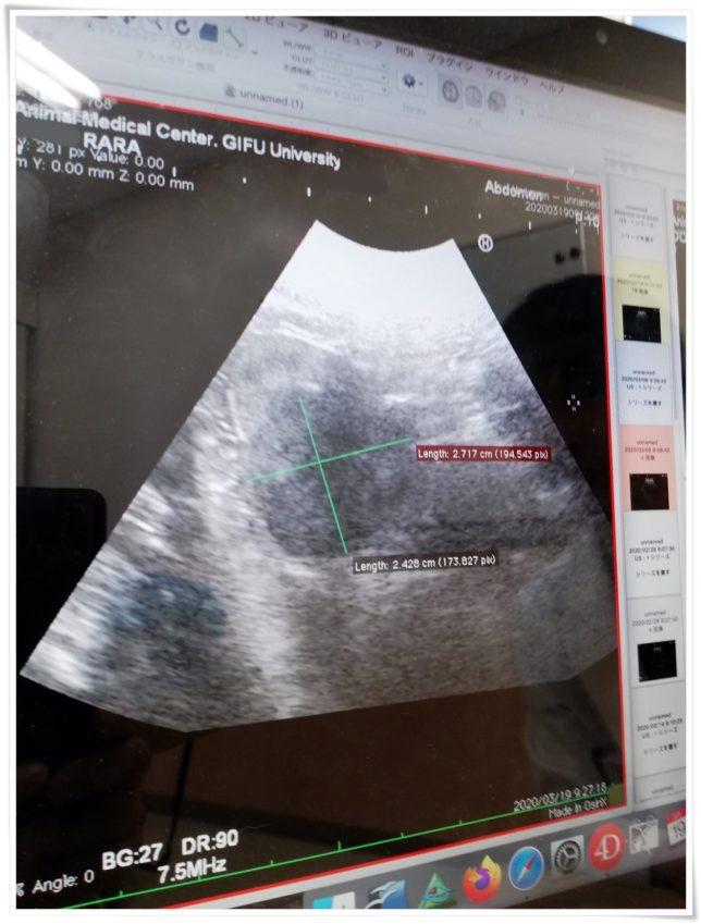 2020-03-19 腹部エコー検査2